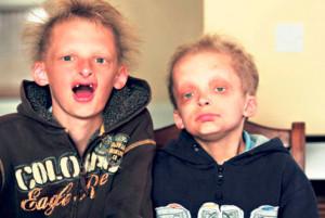 Братья Симон и Джордж Кален страдают редким генетическим заболеванием